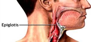 Epiiglotis