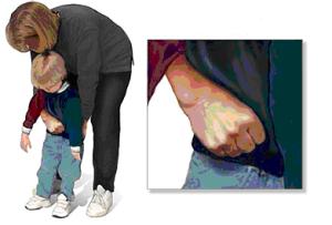 Heimlich niños