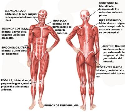 Fibromialgia, todavía una enfermedad desconocida para muchos (1/3)