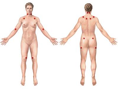 Fibromialgia, todavía una enfermedad desconocida para muchos (2/3)