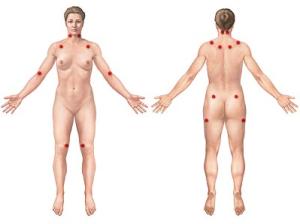 Fibromialgia2