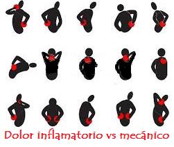 Antiinflamatorio o analgésico: ¿Sabes cuál usar para el dolor? (6/6)